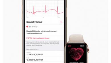 صورة تحديث watchOS 5.2 يجلب تطبيق ECG لساعات ابل في أوروبا وهونج كونج